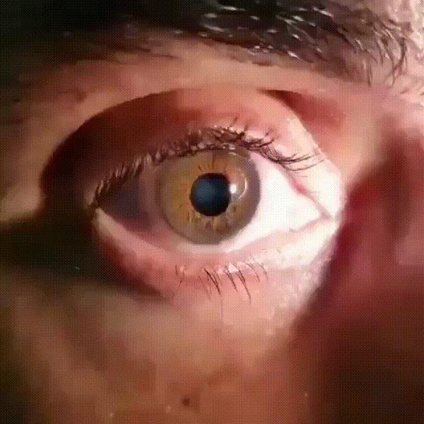 Иридодонез – дрожание радужной оболочки глаза Интересное, Медицина, Офтальмология, Патология, Радужка, Глаза, Гифка